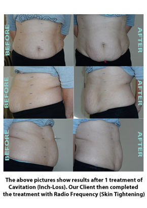Liposuction Before & After 1
