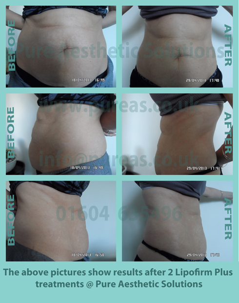 Liposuction Before & After 11