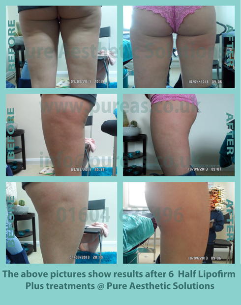 Liposuction Before & After 12