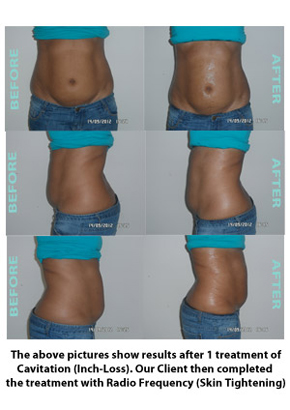 Liposuction Before & After 2