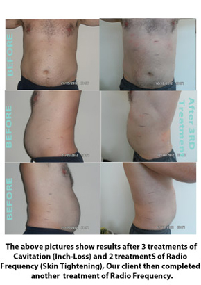 Liposuction Before & After 3