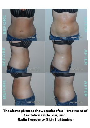Liposuction Before & After 4