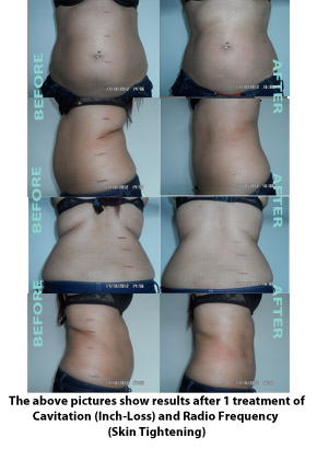 Liposuction Before & After 5