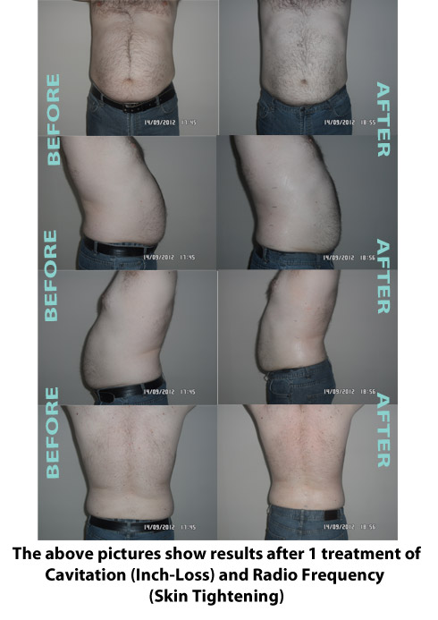 Liposuction Before & After 7