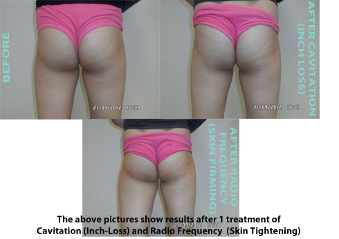 Liposuction Before & After 8